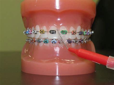braces color bands 25 best ideas about braces colors on