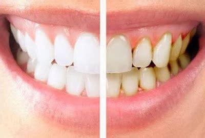 Membersihkan Karang Gigi Di Banjarmasin 12 cara menghilangkan karang gigi secara alami dengan cepat cantikitu informasi tips