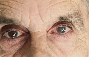 castor blindness all about neovascular glaucoma