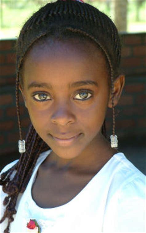 zambian ladies eye kabwe zambia lead poisoning children lead mining smelting