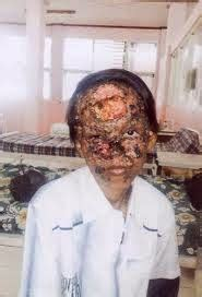 Obat Tradisional Kulit Wajah Kasar waspada bahaya krim pemutih wajah menyebabkan kanker