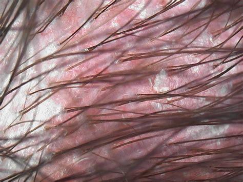 kopfhaut schuppen roter talg auf kopfhaut