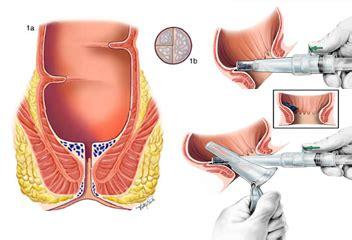 hemorrhoid diagram non surgical hemorrhoid extraction newport