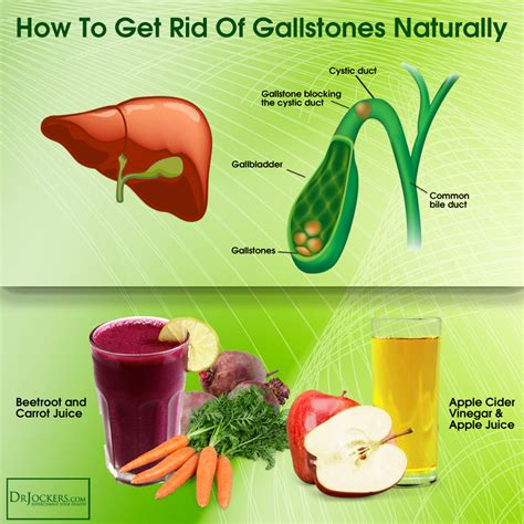 How To Detox Naturally by What Is A Gallbladder Cleanse Recipe Mccnsulting