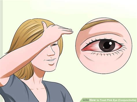 pink eye images how to treat pink eye conjunctivitis with pictures