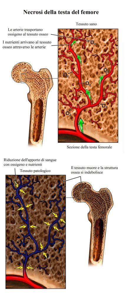 necrosi testa femore dolore all anca destra o sinistra cause sintomi e rimedi