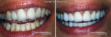 Middle Line Black center teeth and midline