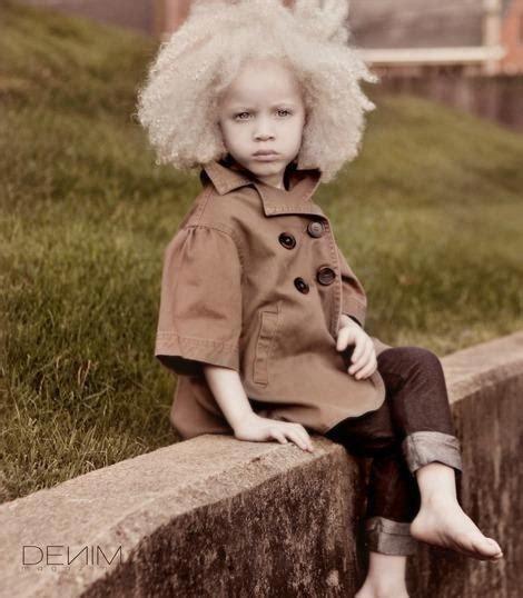 albino hair feel afro albino beautiful albino people pinterest