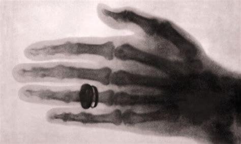 la maquina de rayos x el mayor invento del siglo xx la maquina de rayos x el mayor invento del siglo xx