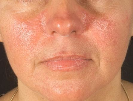 sle of use image gallery lupus skin rash symptoms