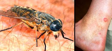 uk insects  bite  sting   nhs choices