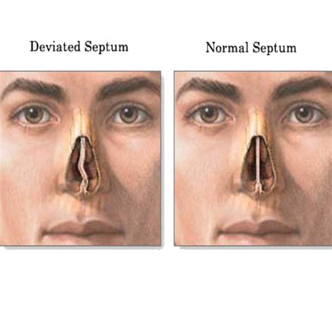 deviated septum diagram nose surgery experience the real