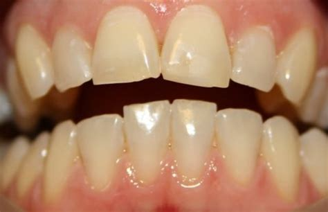 airport dental cork  offer tooth whitening
