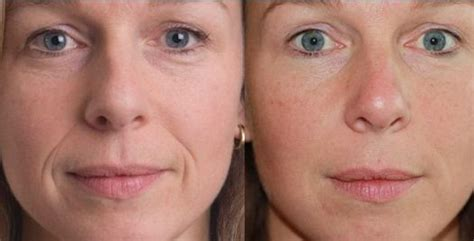 Where Your Wrinkle Filler Gets Injected Podcast by Wrinkle Fillers Best Instant Injectable Topical