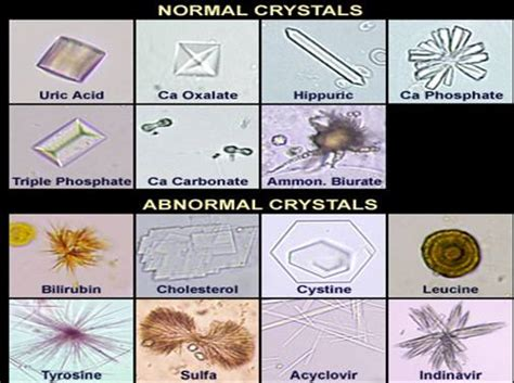 crystals in urine urine crystals forms laboratories
