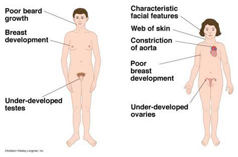 disease on y chromosome klinefelter syndrome causes symptoms treatment
