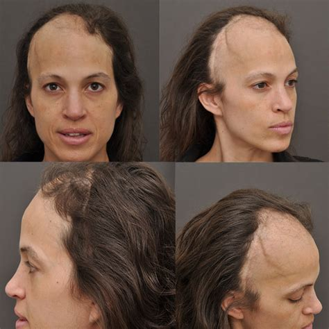 can you color hair after brain surgery hair after a craniotomy hair restoration in a female