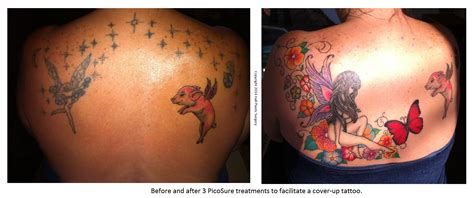 tattoo removal on face before and after laser removal pictures