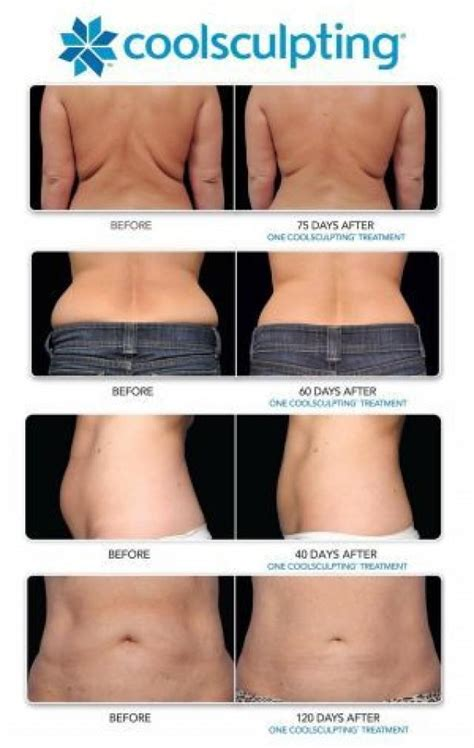 how much does a coolsculpting machine cost health and how much does coolsculpting cost