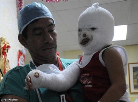 imagenes de niños quemados por fuegos artificiales uso de petardos dej 243 41 menores quemados jrolofer s blog