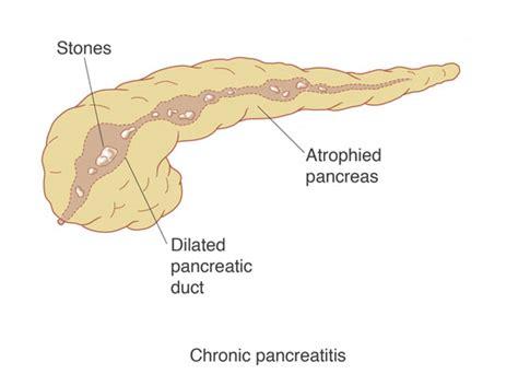 pancreatitis diagram chronic pancreatitis is
