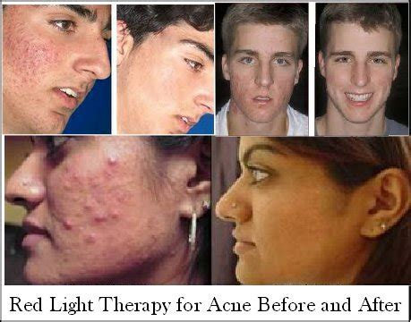 blue light therapy acne before and after red light therapy reduce wrinkles age spots acne more