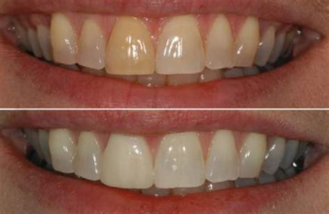 smile brite is a leading provider of teeth whitening in