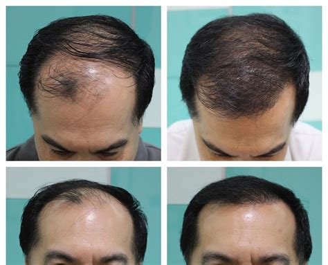 Hair Transplant Cost In The Philippines | hair transplant costs in the philippines hair transplant