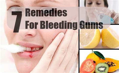 7 home remedies for bleeding gums treatments