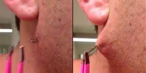 ingrown hair has puss man s pus covered black strand may be the longest ingrown