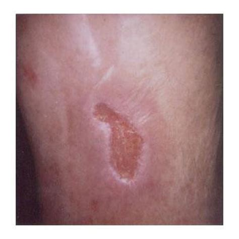 what do bed sores look like 28 images decubitus ulcer