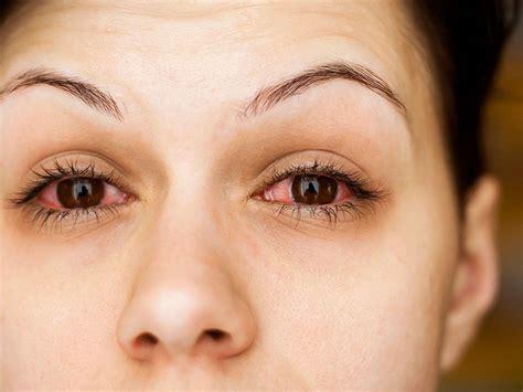 gars 3 sle report 10 cosas que empeoran las alergias