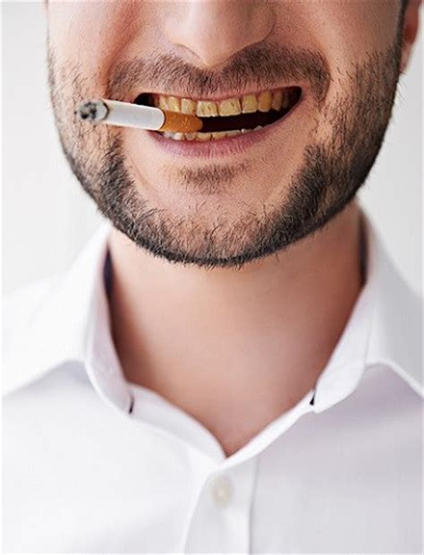 tobacco     yellow  teeth le downs