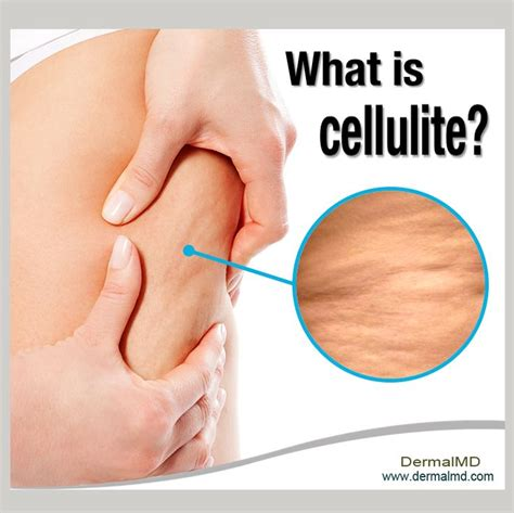 what causes cellulitis infection 12 best what causes cellulitis images on pinterest