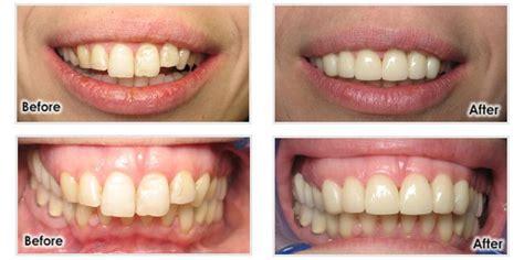 dental implants images