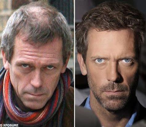 famous black men hairline restoration hugh laurie hair transplant before and after celebrity