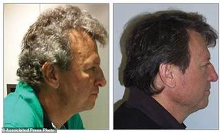 gray hair turning again new cancer drugs turn patients gray hair brown daily