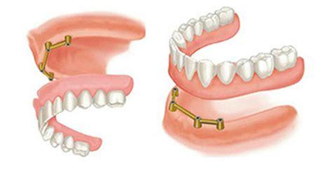 protesi dentarie mobili di ultima generazione radiografie denti tezze sul brenta studio dentistico