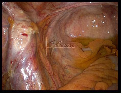 adhesion after c section symptoms abdominal surgery symptoms of adhesions after abdominal