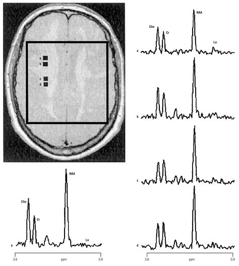 n acetylaspartate creatine ratio a novel notch3 frameshift deletion and mitochondrial