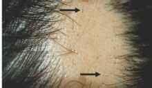 ophiasis pattern hair loss acne keloidalis nuchae also known as folliculitis