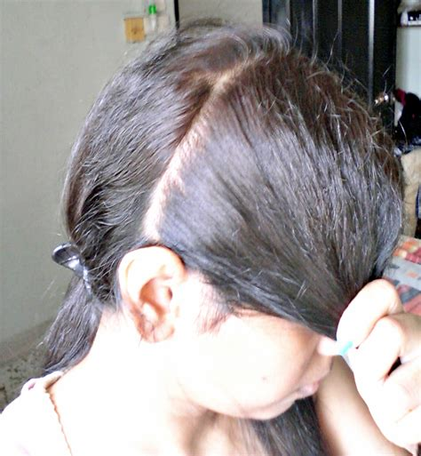 Hair Loss Behind Ears Women | hair loss the ears in ear mites in cats easy treatment