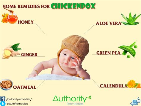home remedies for chickenpox authority remedies