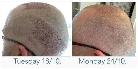 neograft recovery timeline fue recovery timeline photos fue recovery timeline photos
