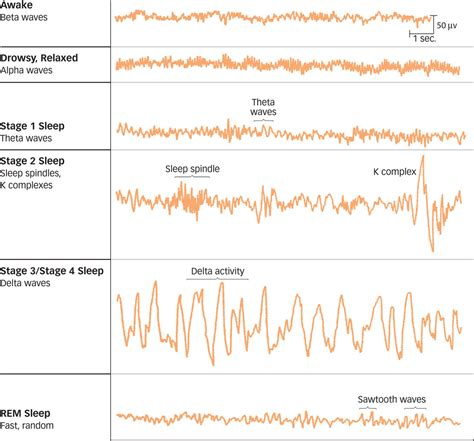 Waves By Sleeper by Eeg Patterns During The Stages Of Sleep The Waking Brain Shows High Frequency Beta Wave Activity