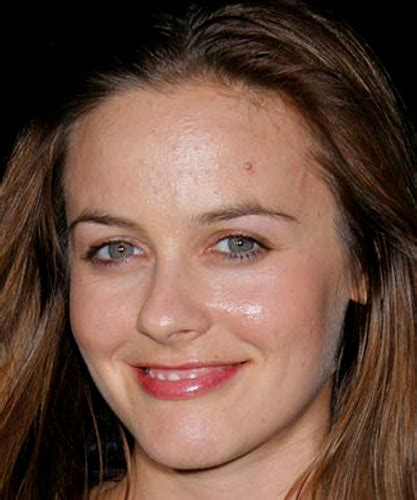actress with acne celebrities with acne breakouts adult acne by holyyawp