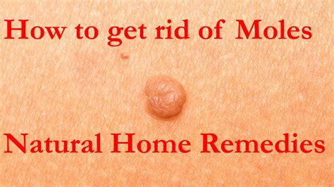 how to get rid of moles home remedies