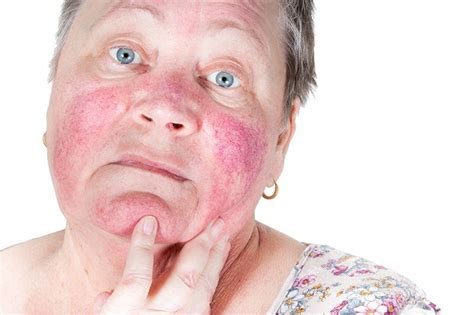 light therapy rosacea light therapy and rosacea what you need to