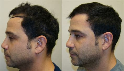 rolando model hair transplant testimonials reviews about jaime testimonials reviews about dr brett bolton