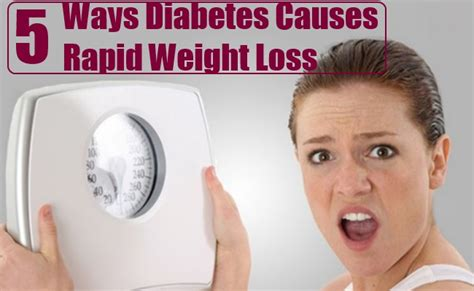 5 weight loss diabetes 5 ways diabetes causes rapid weight loss health care a to z